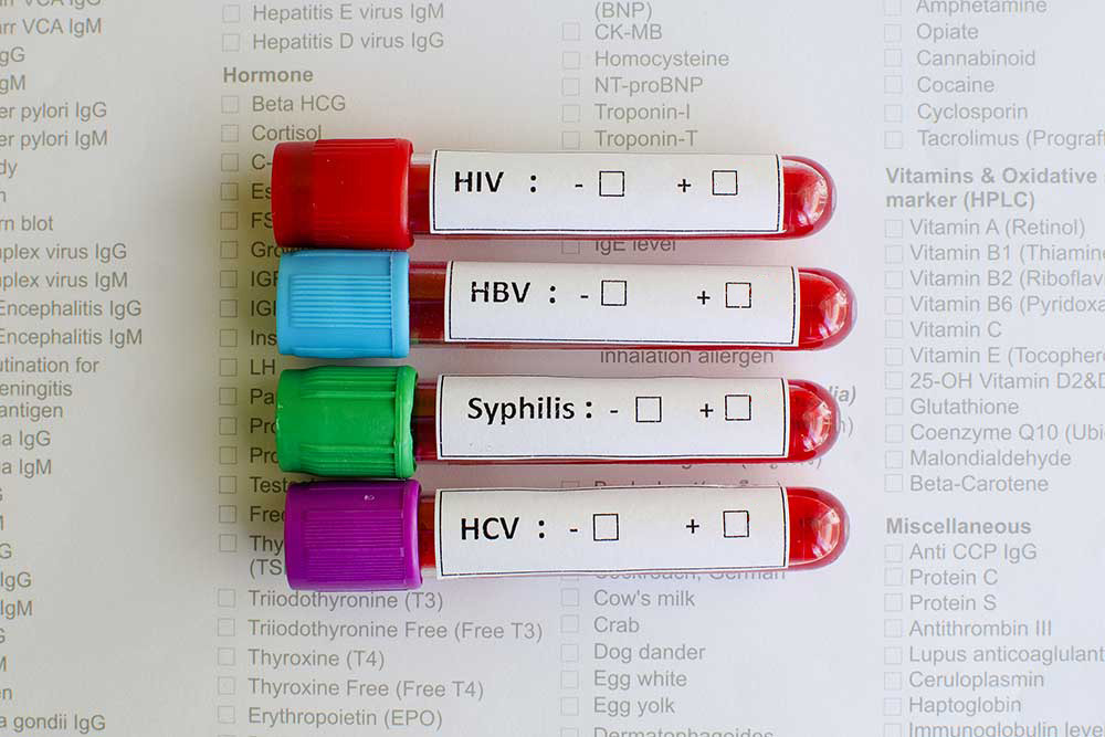 Sexually transmitted disease testing and treatment